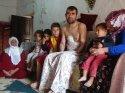 İki kolunu kaybeden inşaat işçisi, protez kol hayali kuruyor