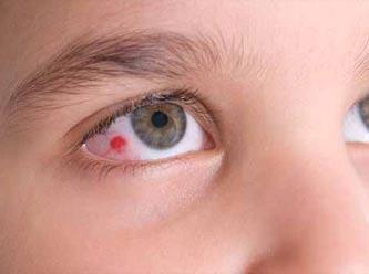 Gözün İçi Nokta Şeklinde Kanlanması